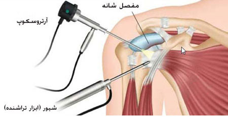 آرتروسکوپی برای درمان آرتروز شانه