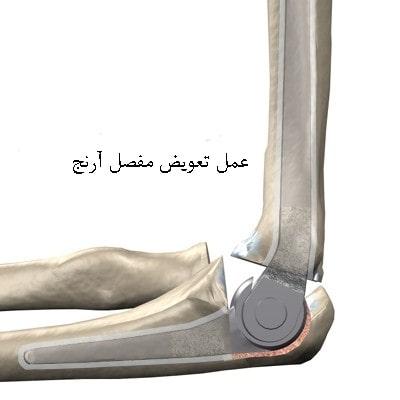 آرتروپلاستی آرنج (تعویض مفصل)