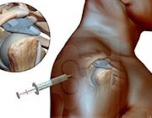 درمان آسیب های روتاتور کاف