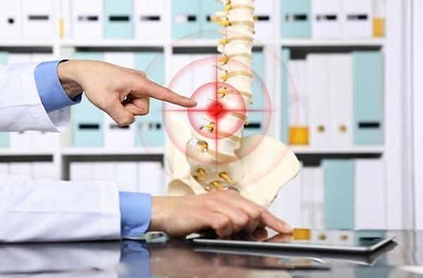 بیرونزدگی دیسک بین مهرهای چه علتی و علائم دارد و درمان آن چیست