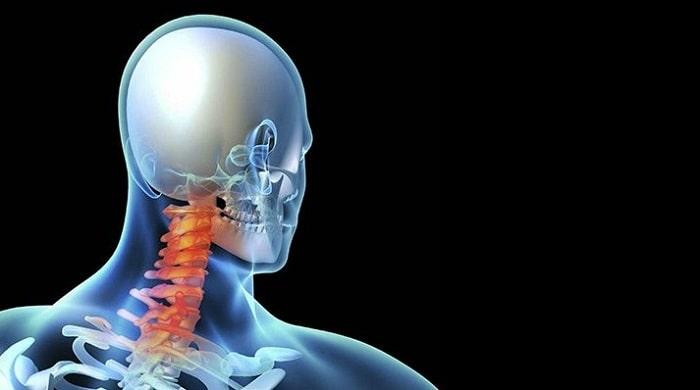 تشخیص دیسک گردن با انجام تست عصب، سی تی اسکن و ام آر آی