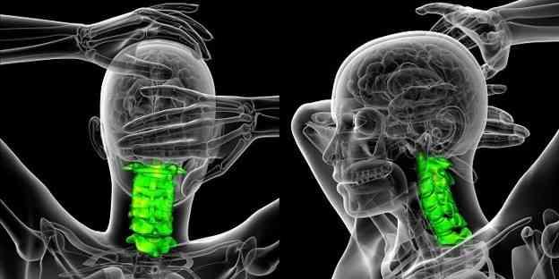 درمان آرتروز گردن با فیزیوتراپی ماساژ، ورزش و طب سوزنی