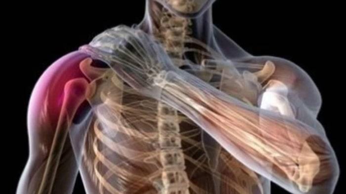 درمان آسیب شبکه عصبی بازویی براکیال شانه (آمیوتروفی) بابدون جراحی
