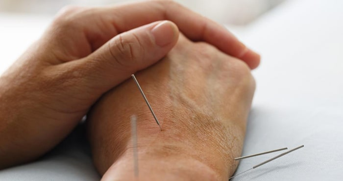 درمان با طب سوزنی چگونه انجام میشود؟