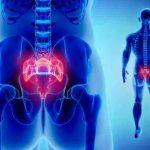 درمان درد دنبالچه بدون جراحی فیزیوتراپی، ورزش، دارو و تزریق