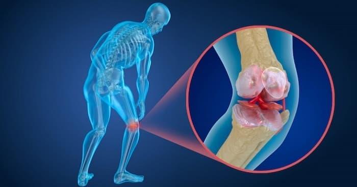 شکستگی در اثر وارد شدن ضربههای با انرژی کم یکی از علائم شایع پوکی استخوان