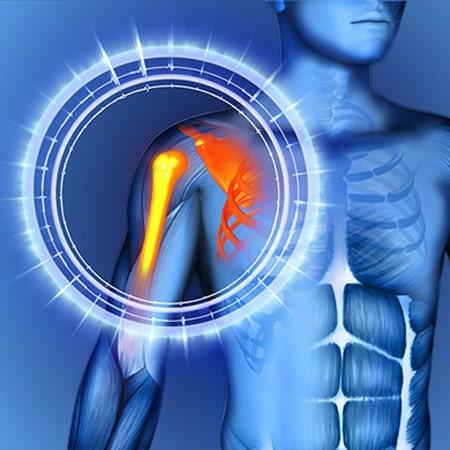 علائمی که باید برای درد شانه به متخصص ارتوپدی مراجعه کنید