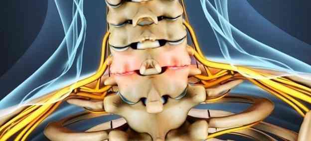 علائم و نشانه_های آرتروز گردن چیست؟