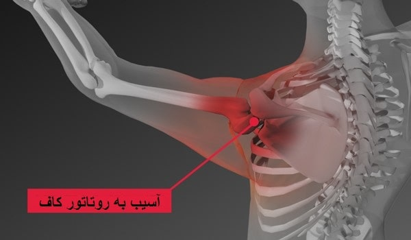 پارگی روتاتور کاف شانه(عدم اتصال تاندونهای چهار عضله)بایا بدون جراحی