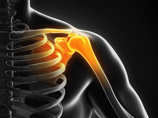 پارگی لابروم شانه به علت صدمه به غضروف در ورزش های سنگین و تصادف