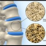 پوکی استخوان و افزایش کلسیم خون