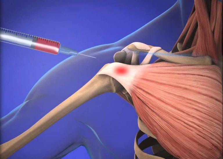 روش های درمانی برای بورسیت مفصل شانه