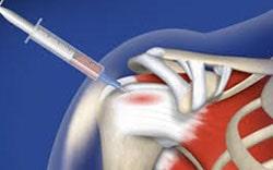 پی آر پی برای درمان آرتروز شانه