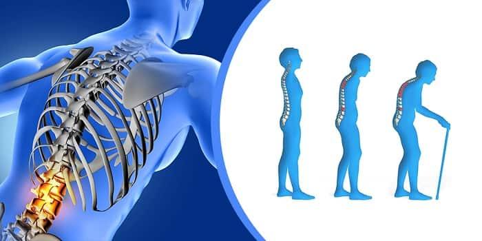 کوتاه شدن قد یا گوژپشتییکی از علائم پوکی استخوان