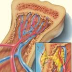 درد استخوان و علل آن