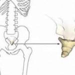 درمان بدون جراحی درد دنبالچه