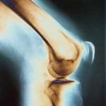 زانو درد در نوجوانی