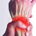 علت درد مچ دست چیست