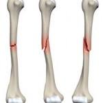 شکستگی استخوان , درمان شکستگی استخوان, توانبخشی در شکستگی استخوان