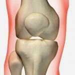 سندرم درد کشکک زانو و درمان آن