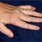 نشانههای رماتیسم مفصلی