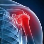 روش های درمانی آرتروز شانه