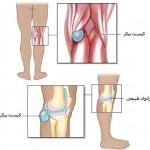 برجستگی پشت زانو یا کیست بیکر یا کیست پوپلیته