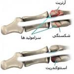 علت درد زیر شست پا یا استخوان سزاموئید
