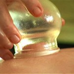 درمان کمردرد با حجامت