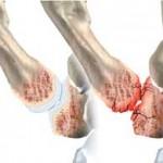 آرتروز انگشتان دست  ؛ علائم , تشخیص و درمان