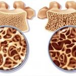 موثرترین عامل در کاهش پوکی استخوان
