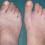 درمان هالوکس والگوس یا قوز شست پا