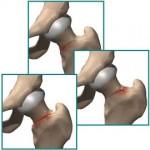 علائم شکستگی استرسی مفصل ران و درمان آن