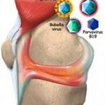 آرتریت ویروسی و التهاب مفاصل