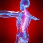 تشخیص و درمان انحراف ستون فقرات (اسکولیوز)