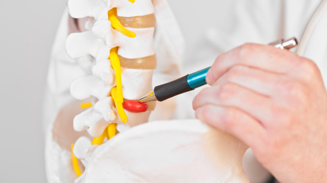 642x361-Herniated_Disk_Surgery-What_to_Expect
