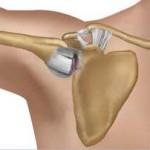 در رفتگی مفصل آرنج