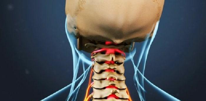 درمان دیسک گردن خفیف و شدید با دارو، تزریق و فیزیوتراپی