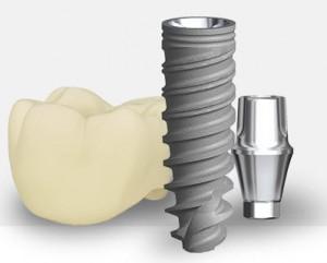 DentalImplantArtwork