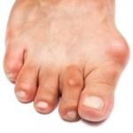 علت برجستگی شست پا یا هالوکس والگوس