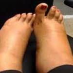 ورزش های مناسب برای ورم پا