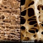 راههای پیشگیری و درمان پوکی استخوان