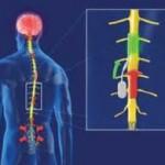 علل آسیب های طناب نخاعی