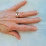 علل و علامت های آرتریت انگشتان دست