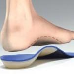 افزایش قوس کف پا یا کلا فوت