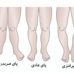 علل و درمان پاهای ضربدری