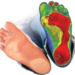 علائم افزایش قوس کف پا