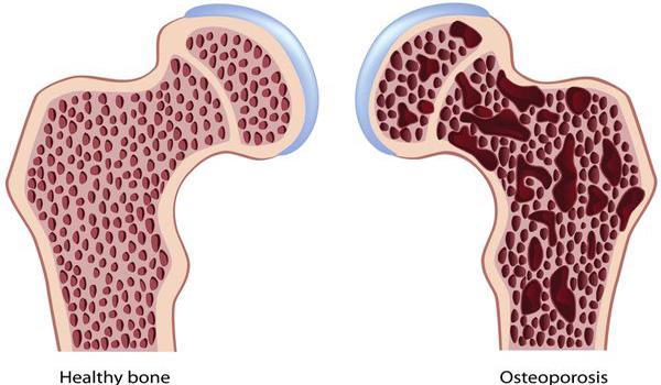 osteoporosis-1116
