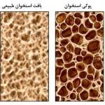کاهش کلسیم خون (هیپوکلسمی)