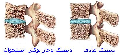 osteoprosis1